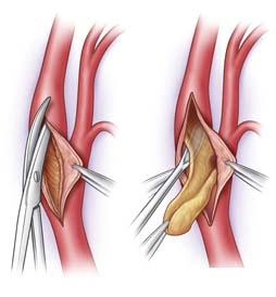 india-surgery-carotid-endarterectomy4