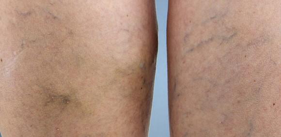 tratamento-de-varizes-580x283